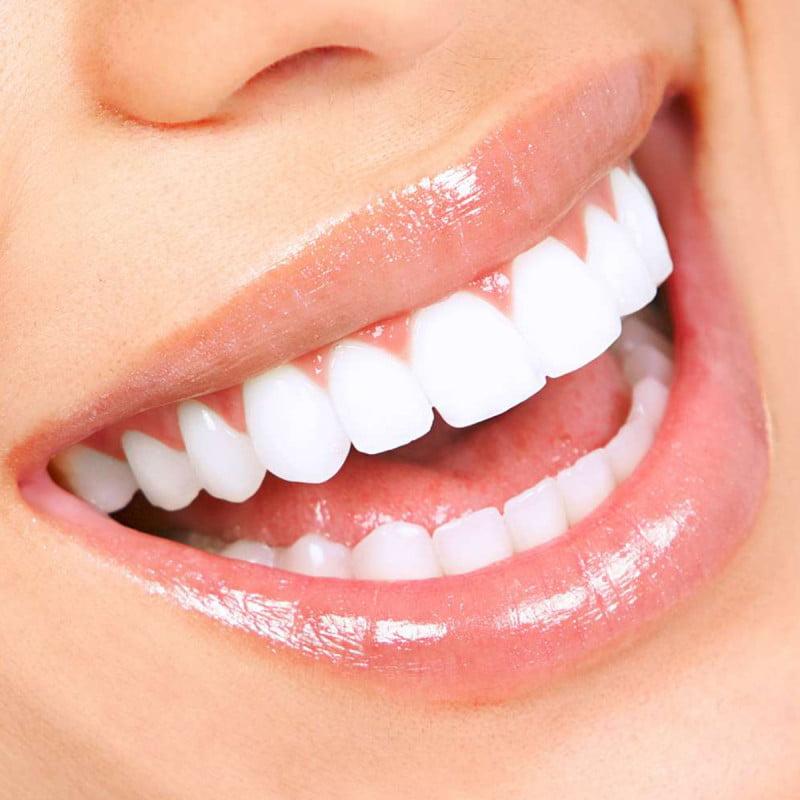 Dinții